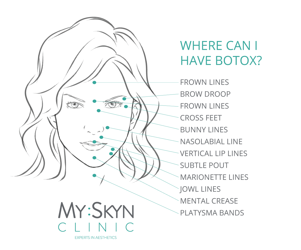 Areas treated with Botox at MySkyn Clinic in Bradford