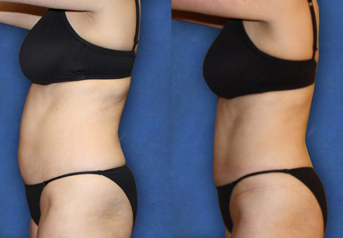 Inch Loss & Body Contouring Treatments at MySkyn Clinic in Bradford