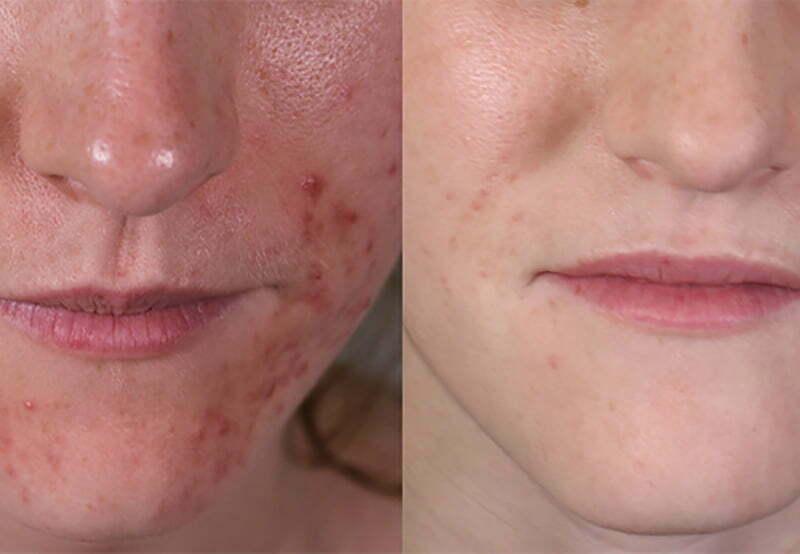 Dermatitis Treatment at MySkyn Clinic in Bradford