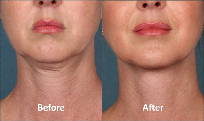 Double Chin Treatment at MySkyn Clinic in Bradford