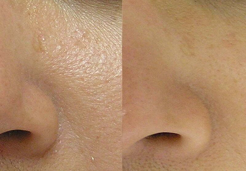 Enlarged Pores Treatment at MySkyn Clinic in Bradford