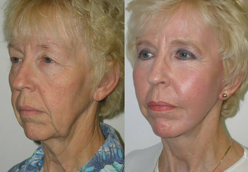Jowls Treatment at MySkyn Clinic in Bradford
