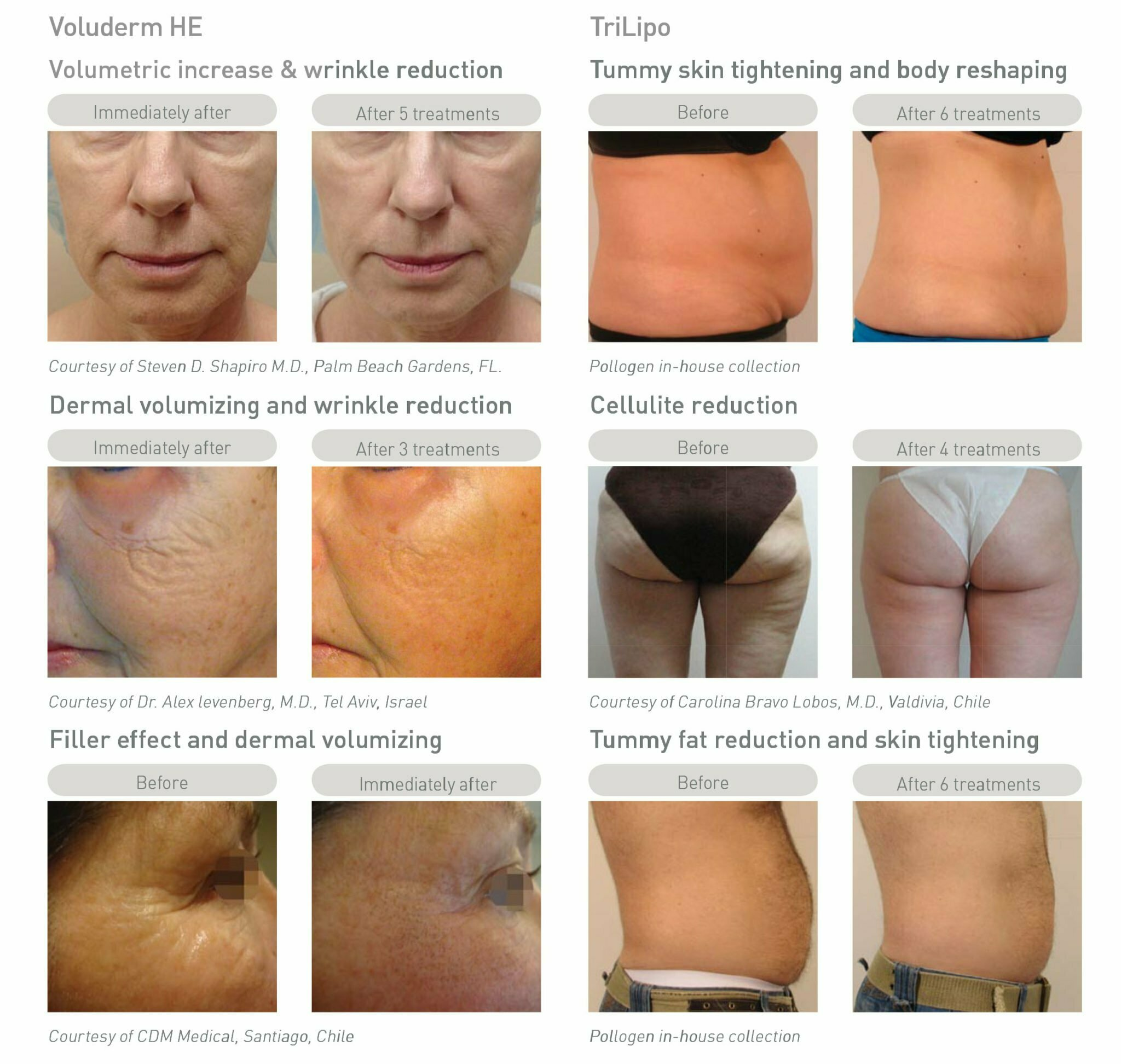 Before and after aesthetic treatments at MySkyn Clinic in Bradford