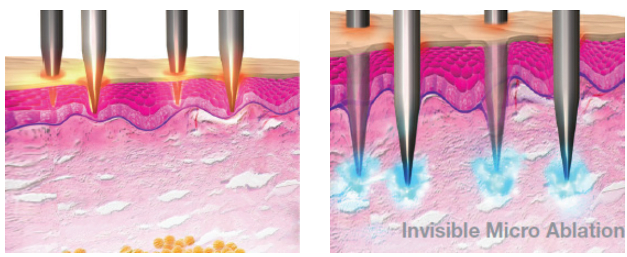 VoluDerm Micro-Pins Technology