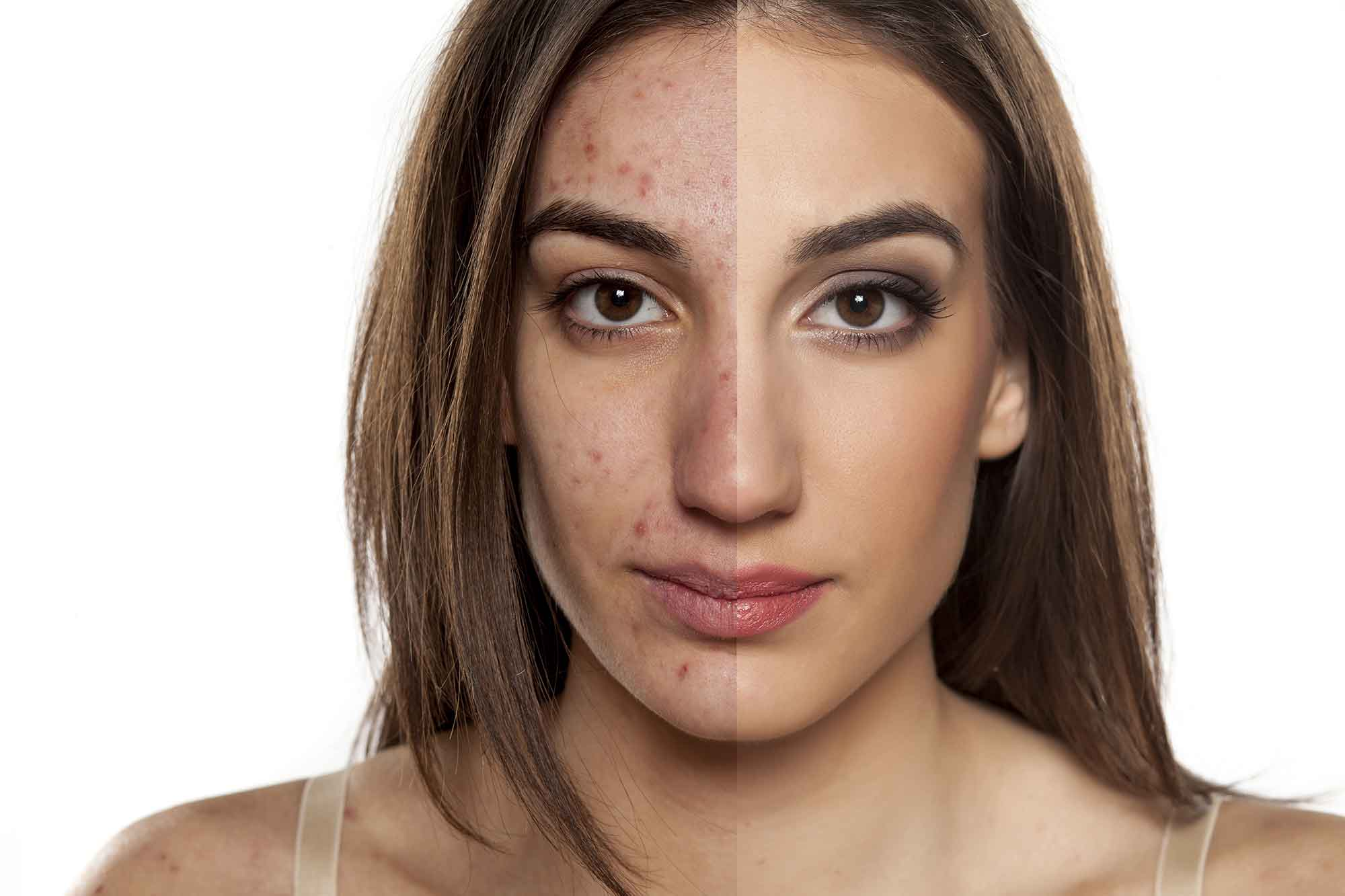Acne Scarring Treatment at MySkyn Clinic in Bradford