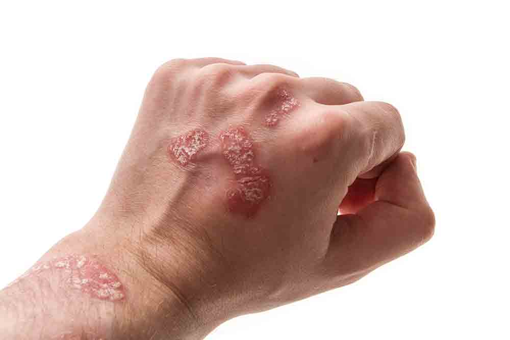 Psoriasis Treatments at MySkyn Clinic in Bradford