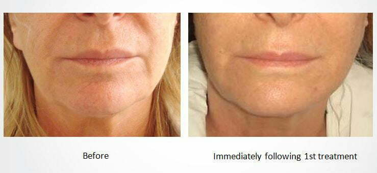 Dermal Volumising with VoluDerm treatment at MySkyn Clinic in Bradford