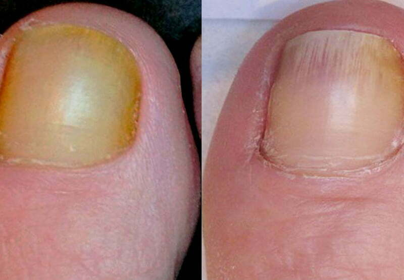 Nail Fungal Infection Treatment at MySkyn Clinic in Bradford