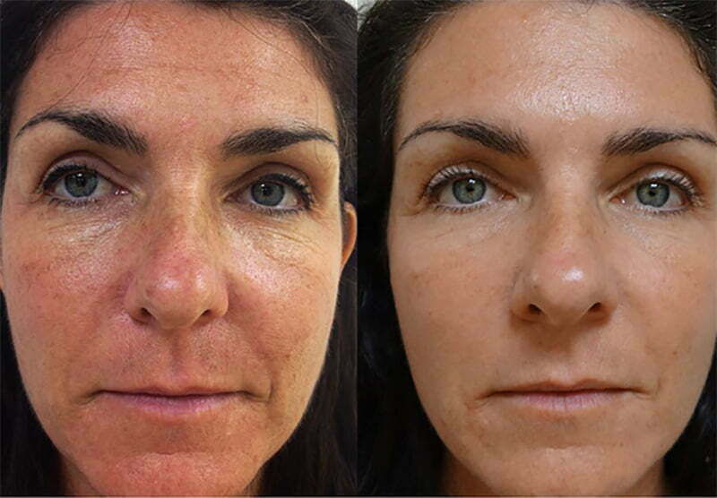 Rosacea Treatment at MySkyn Clinic in Bradford