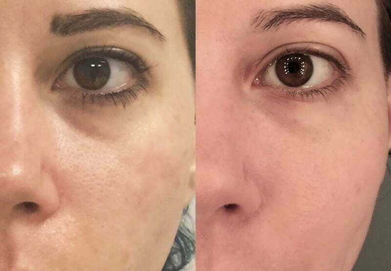 Tired Eyes Treatment at MySkyn Clinic in Bradford