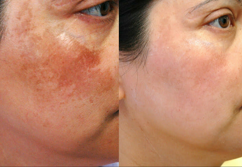 Skin Pigmentation Treatments at MySkyn Clinic in Bradford