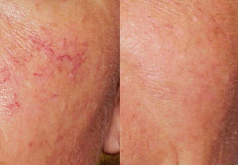 Thread Veins Treatment at MySkyn Clinic in Bradford