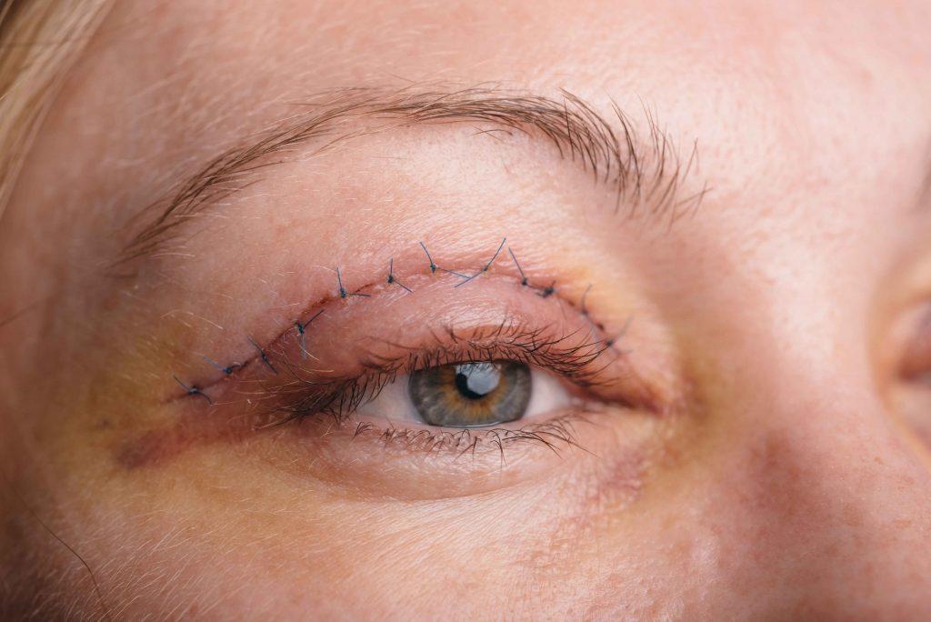 upper eyelid blepharoplasty Bradford